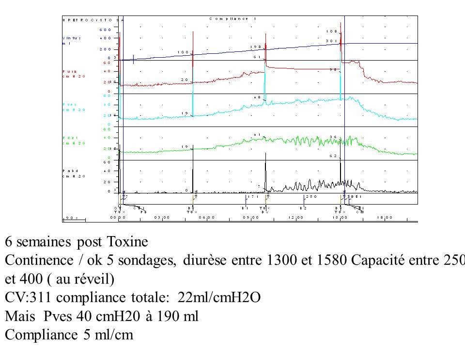 6 semaines post Toxine Continence / ok 5 sondages, diurèse entre 1300 et 1580 Capacité entre 250. et 400 ( au réveil)
