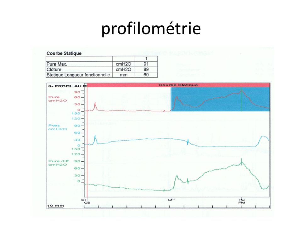 profilométrie