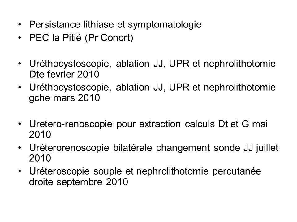 Persistance lithiase et symptomatologie