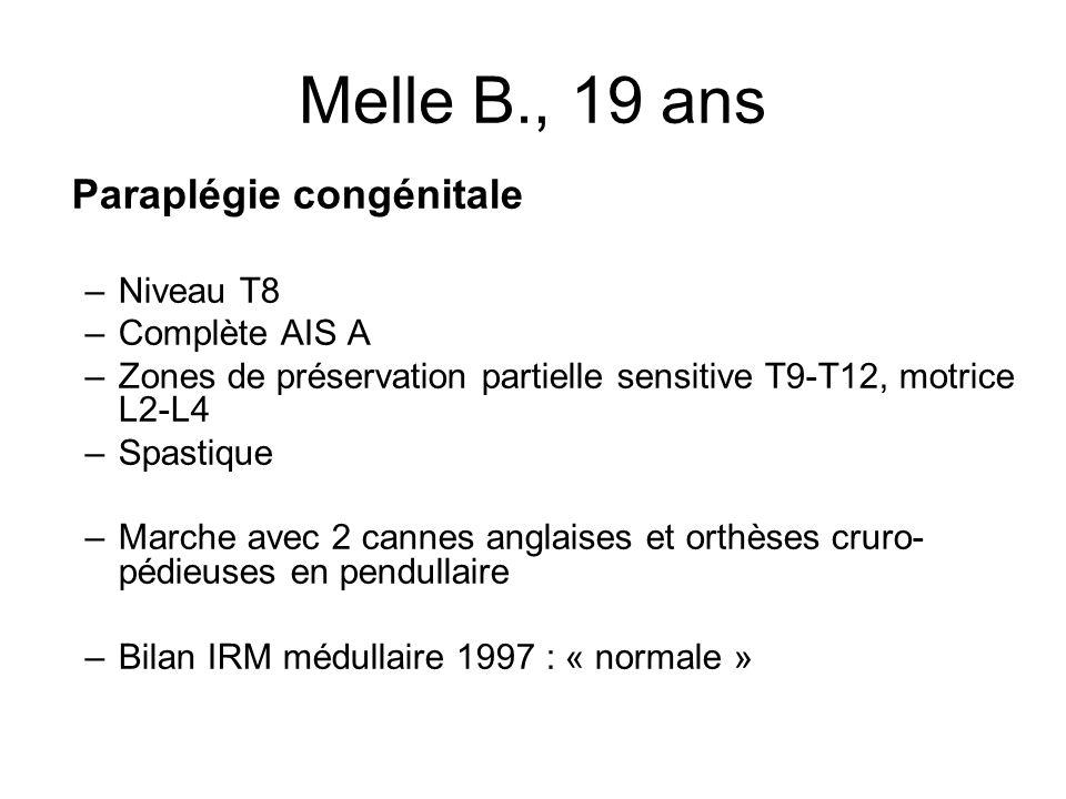 Melle B., 19 ans Paraplégie congénitale Niveau T8 Complète AIS A