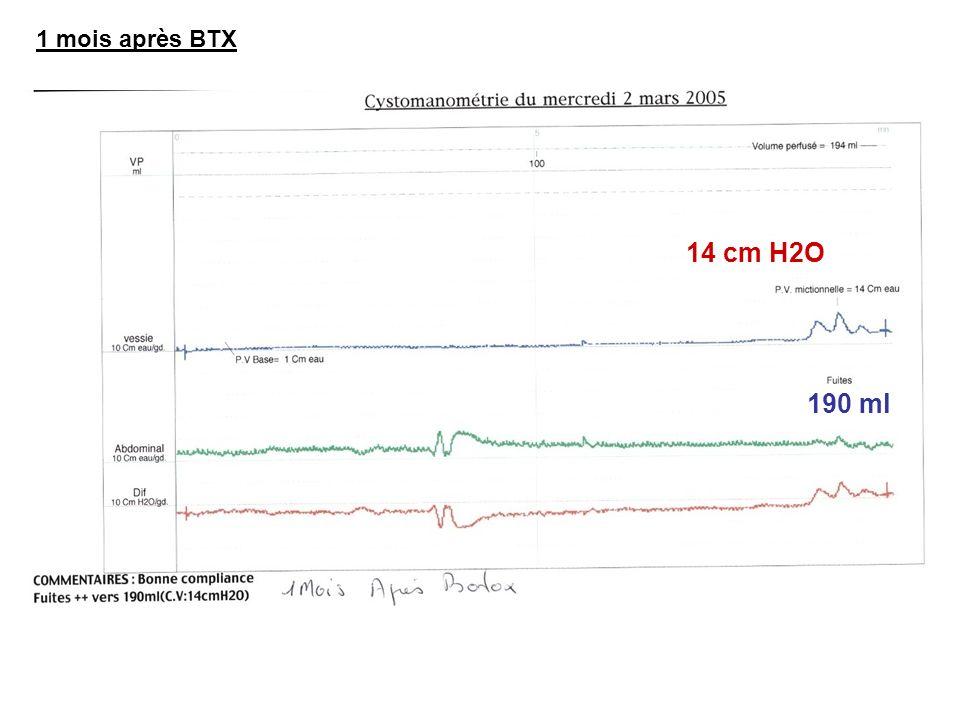 1 mois après BTX 14 cm H2O 190 ml