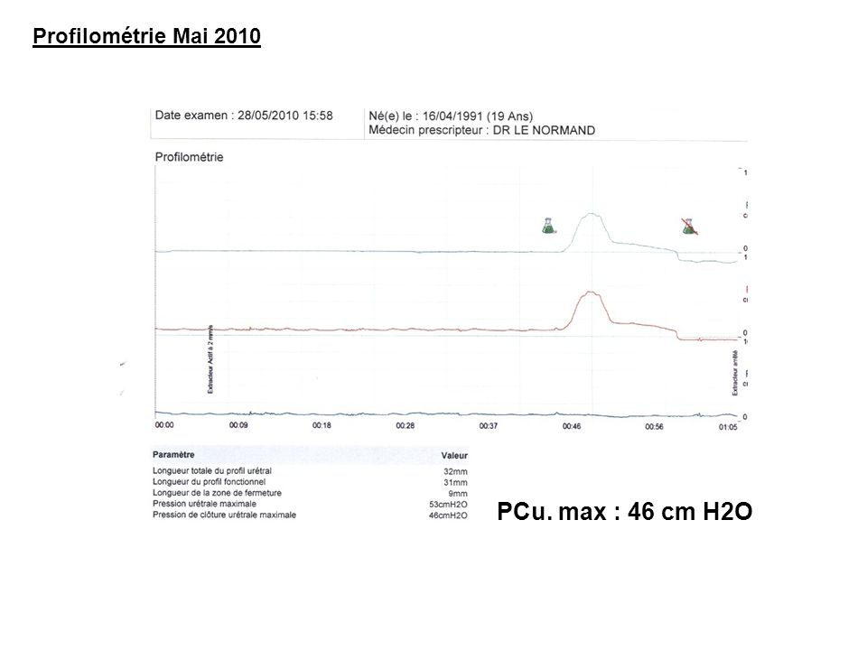 Profilométrie Mai 2010 PCu. max : 46 cm H2O