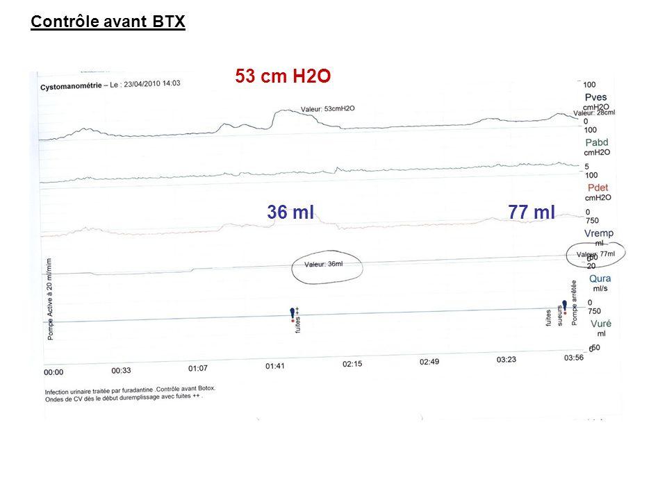 Contrôle avant BTX 53 cm H2O 36 ml 77 ml