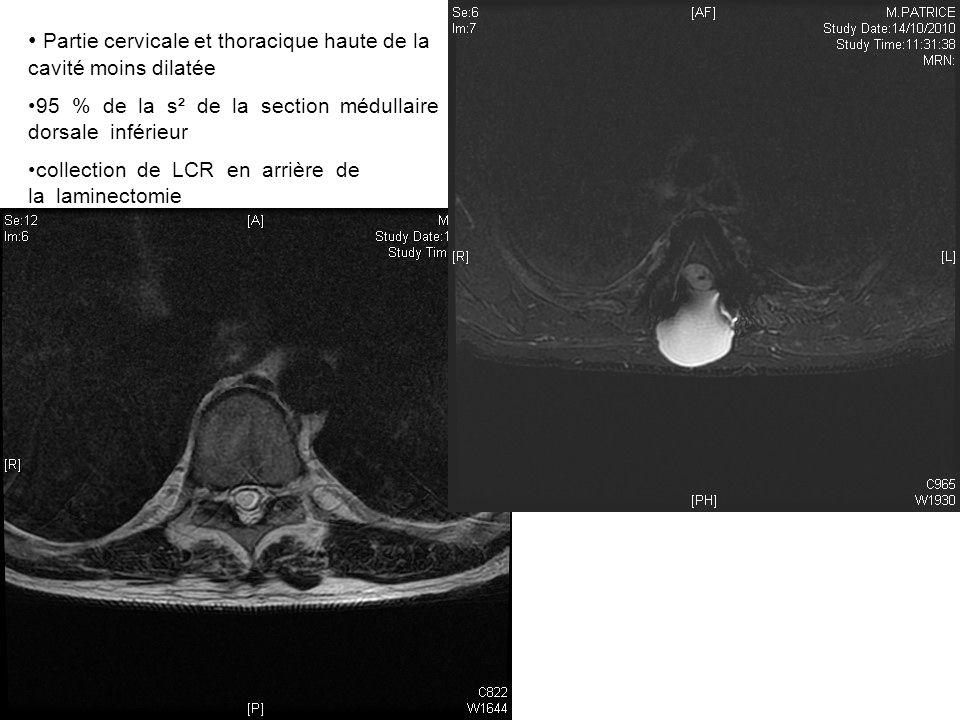 Partie cervicale et thoracique haute de la cavité moins dilatée