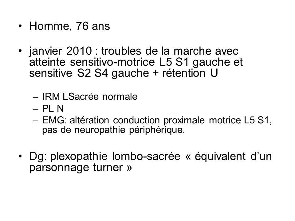 Dg: plexopathie lombo-sacrée « équivalent d'un parsonnage turner »