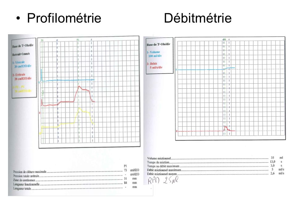 Profilométrie Débitmétrie