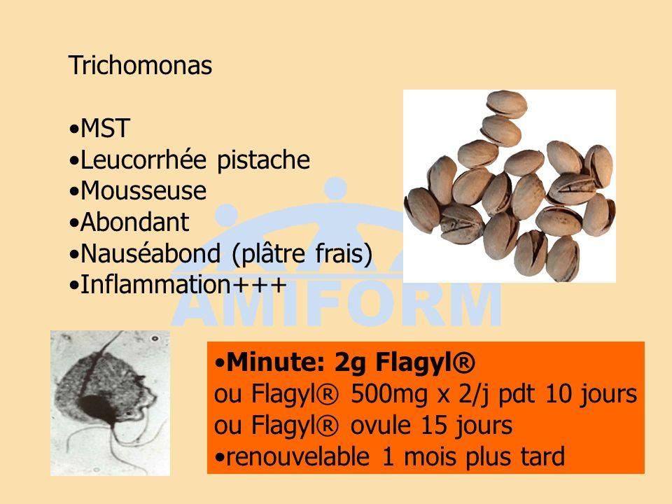TrichomonasMST. Leucorrhée pistache. Mousseuse. Abondant. Nauséabond (plâtre frais) Inflammation+++