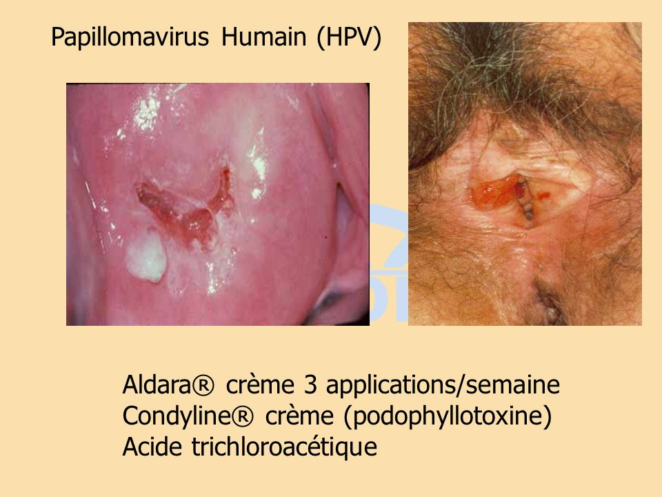Papillomavirus Humain (HPV)