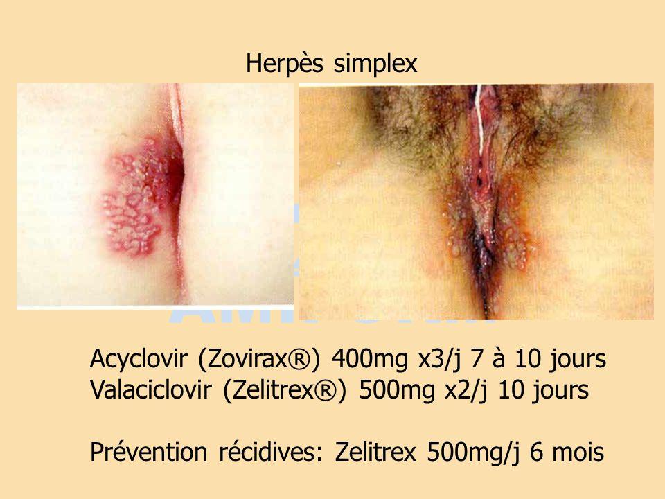 Herpès simplexAcyclovir (Zovirax®) 400mg x3/j 7 à 10 jours. Valaciclovir (Zelitrex®) 500mg x2/j 10 jours.