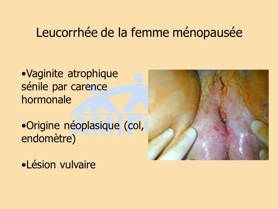 Leucorrhée de la femme ménopausée