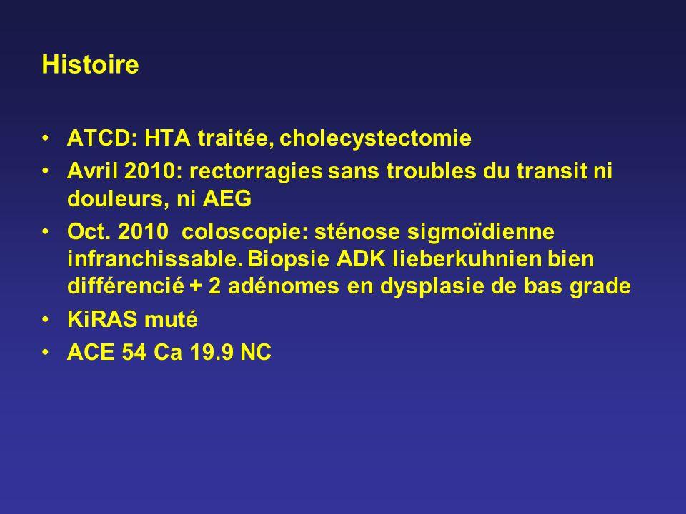 Histoire ATCD: HTA traitée, cholecystectomie