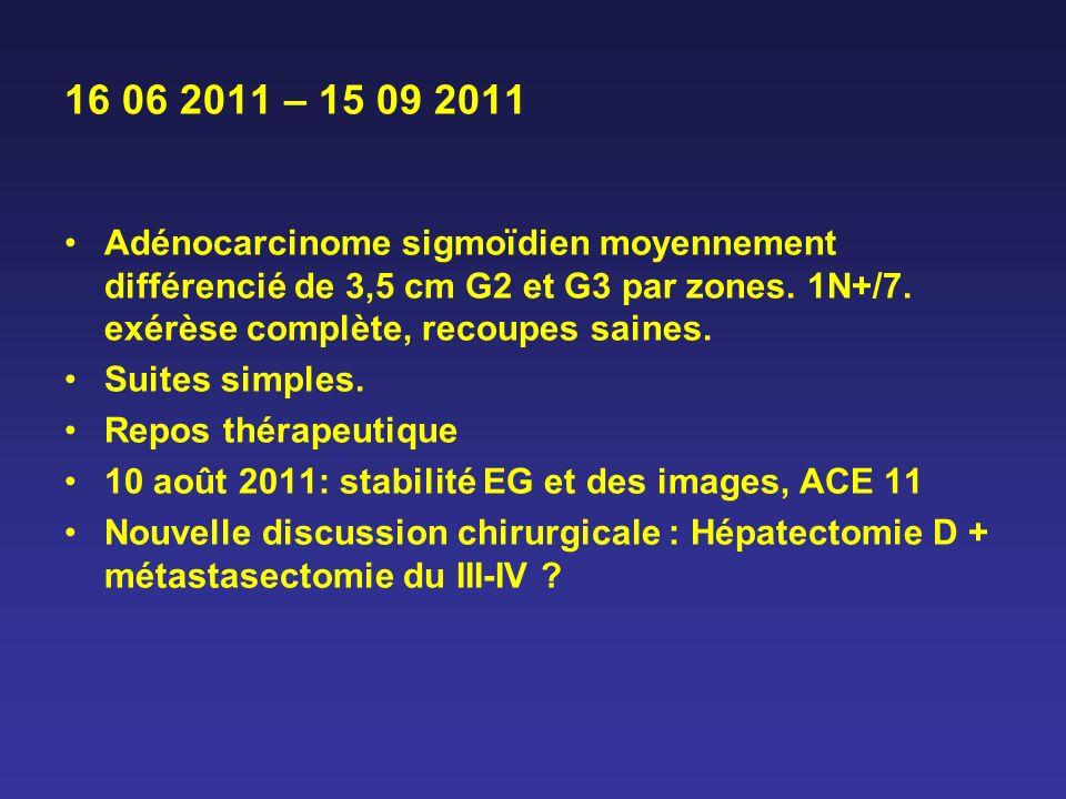 16 06 2011 – 15 09 2011 Adénocarcinome sigmoïdien moyennement différencié de 3,5 cm G2 et G3 par zones. 1N+/7. exérèse complète, recoupes saines.