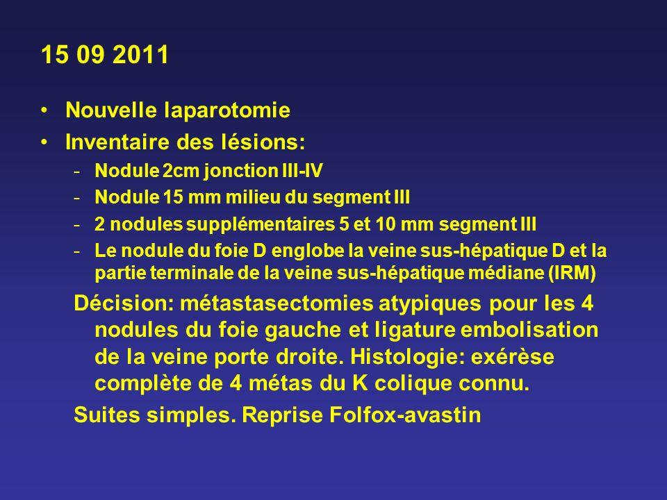 15 09 2011 Nouvelle laparotomie Inventaire des lésions: