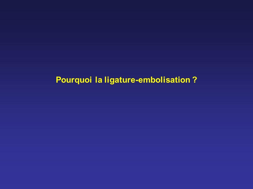 Pourquoi la ligature-embolisation