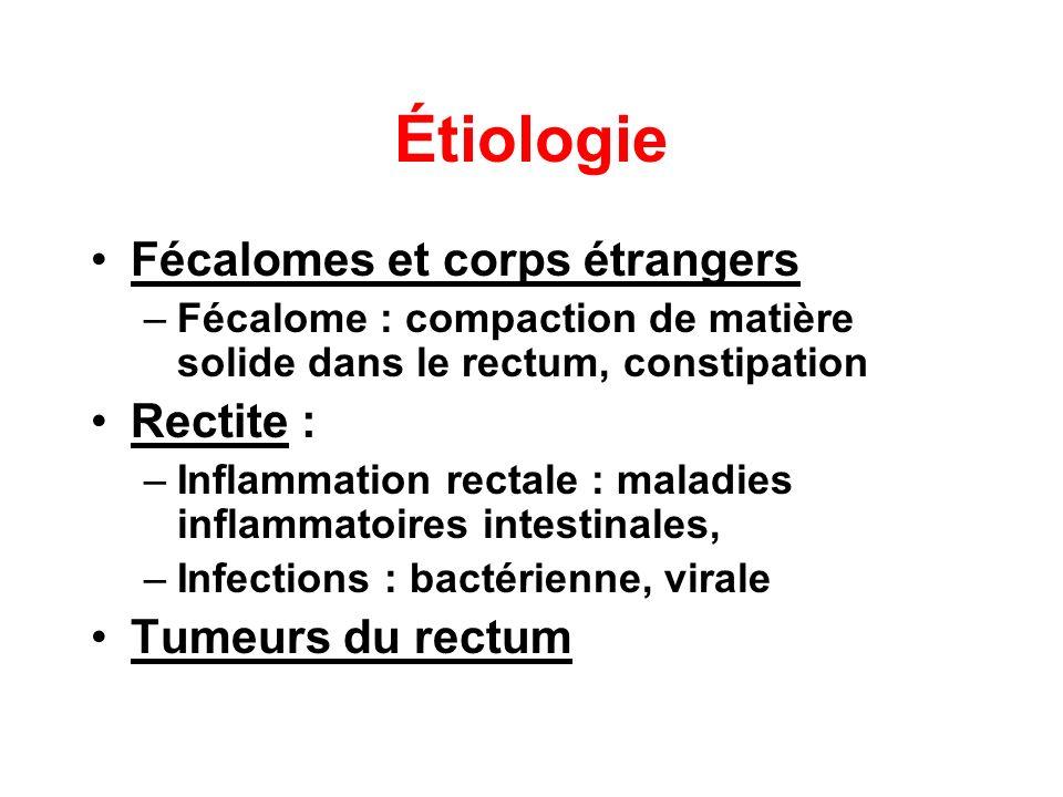 Étiologie Fécalomes et corps étrangers Rectite : Tumeurs du rectum