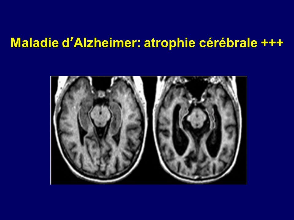 Maladie d'Alzheimer: atrophie cérébrale +++