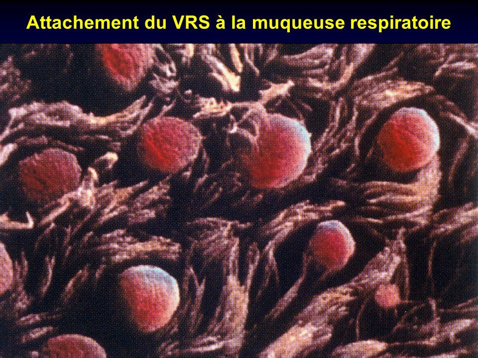 Attachement du VRS à la muqueuse respiratoire