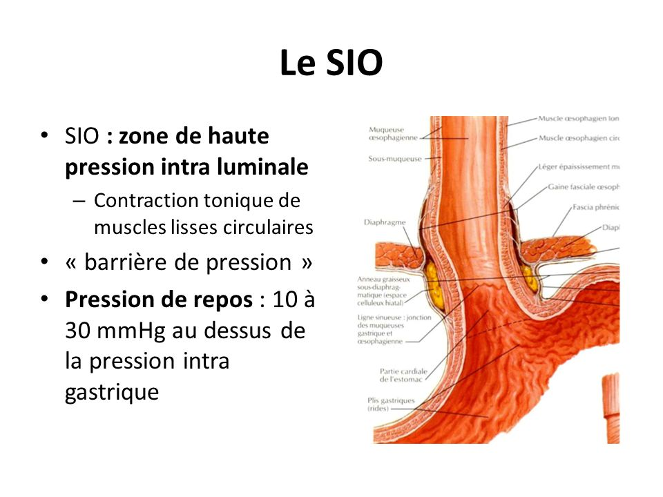 Le SIO SIO : zone de haute pression intra luminale