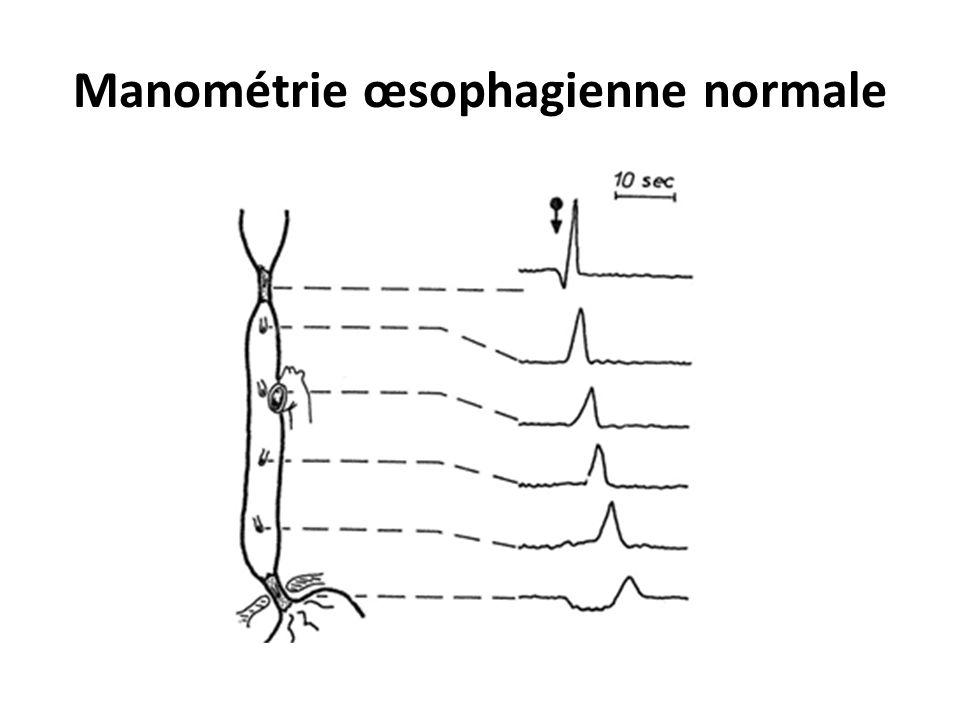 Manométrie œsophagienne normale