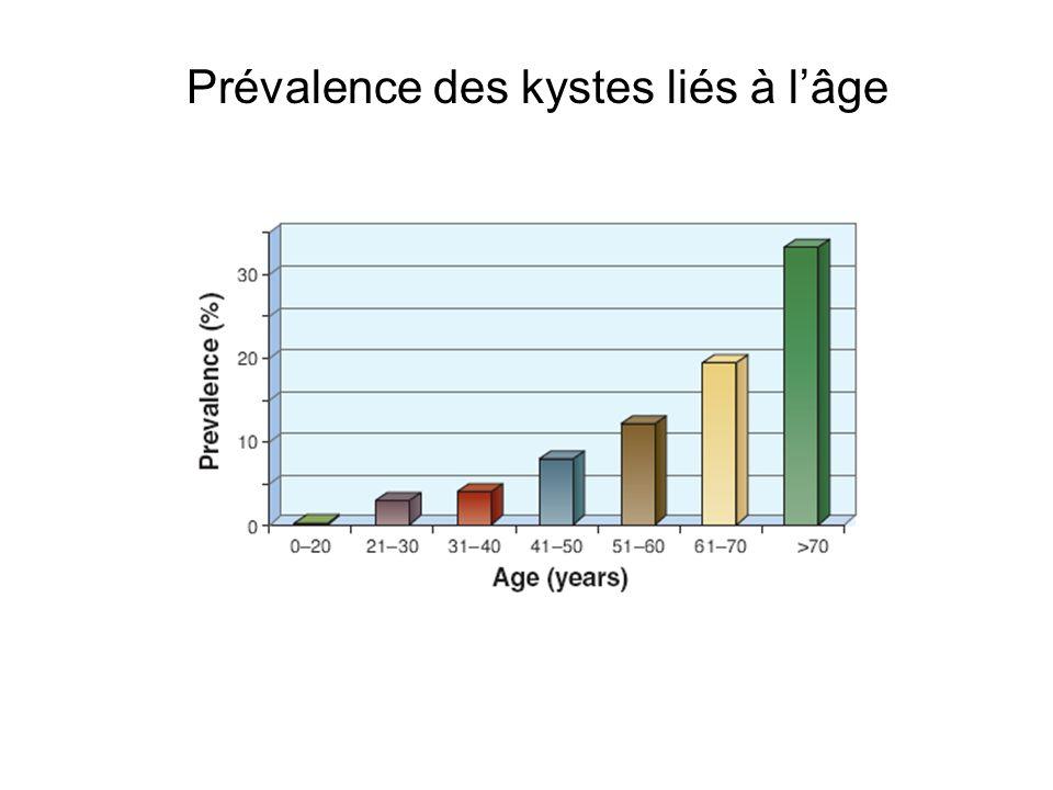 Prévalence des kystes liés à l'âge