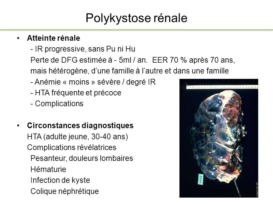 Polykystose rénale Atteinte rénale - IR progressive, sans Pu ni Hu