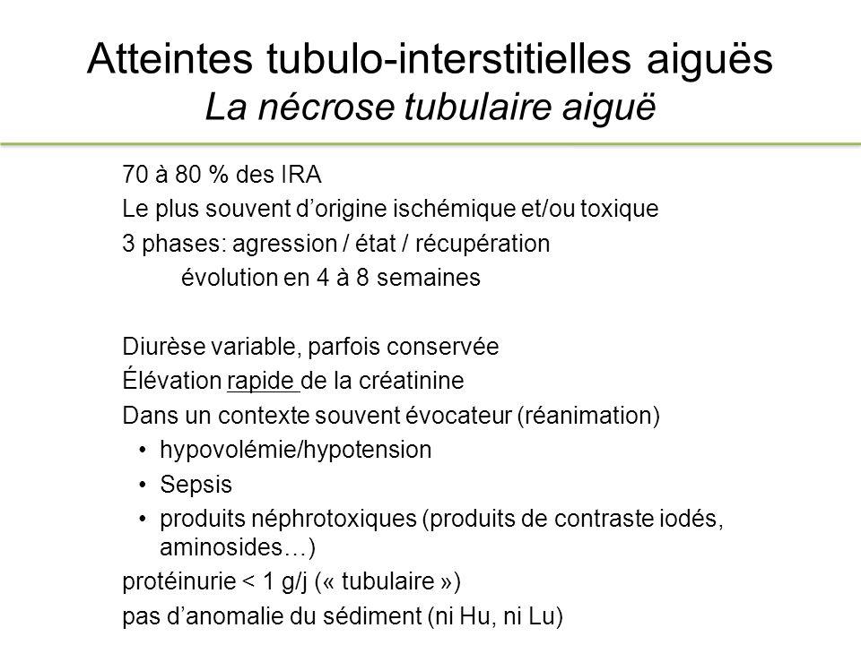 Atteintes tubulo-interstitielles aiguës La nécrose tubulaire aiguë