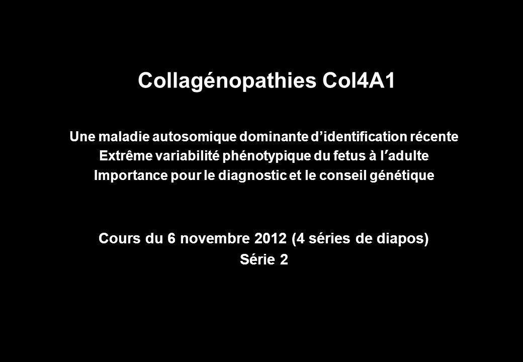 Collagénopathies Col4A1 Une maladie autosomique dominante d'identification récente Extrême variabilité phénotypique du fetus à l'adulte Importance pour le diagnostic et le conseil génétique Cours du 6 novembre 2012 (4 séries de diapos) Série 2