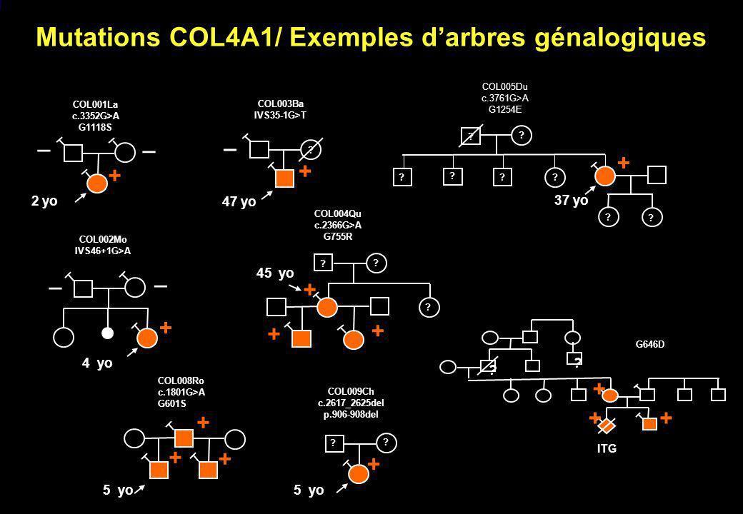 Mutations COL4A1/ Exemples d'arbres génalogiques