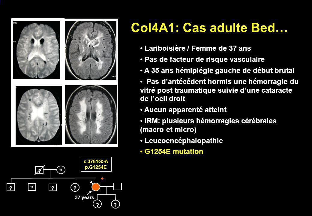 Col4A1: Cas adulte Bed… Lariboisière / Femme de 37 ans
