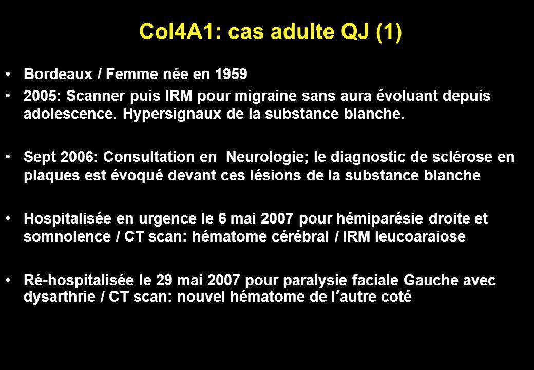 Col4A1: cas adulte QJ (1) Bordeaux / Femme née en 1959