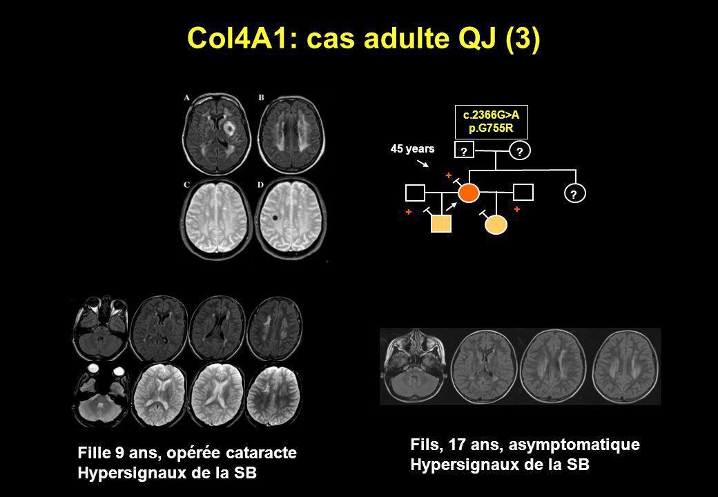 Col4A1: cas adulte QJ (3) Fils, 17 ans, asymptomatique