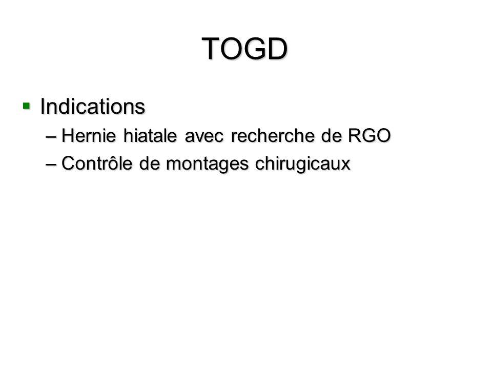 TOGD Indications Hernie hiatale avec recherche de RGO
