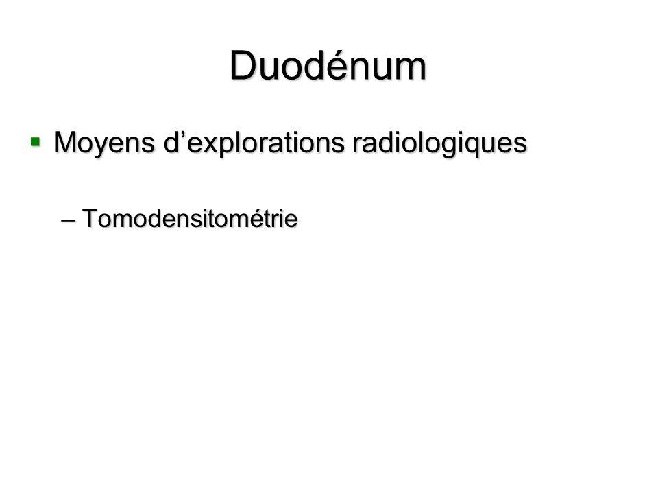 Duodénum Moyens d'explorations radiologiques Tomodensitométrie