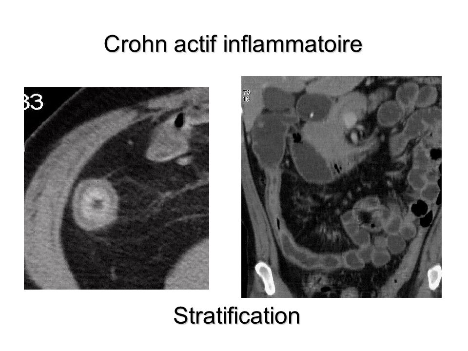 Crohn actif inflammatoire