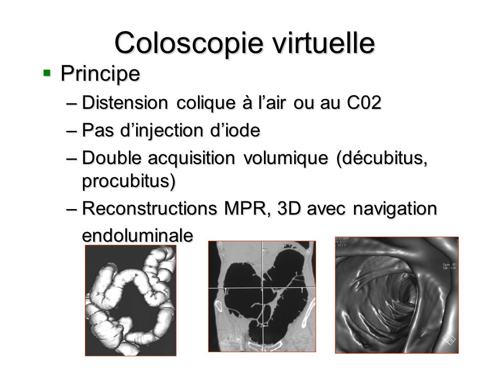 Coloscopie virtuelle Principe Distension colique à l'air ou au C02