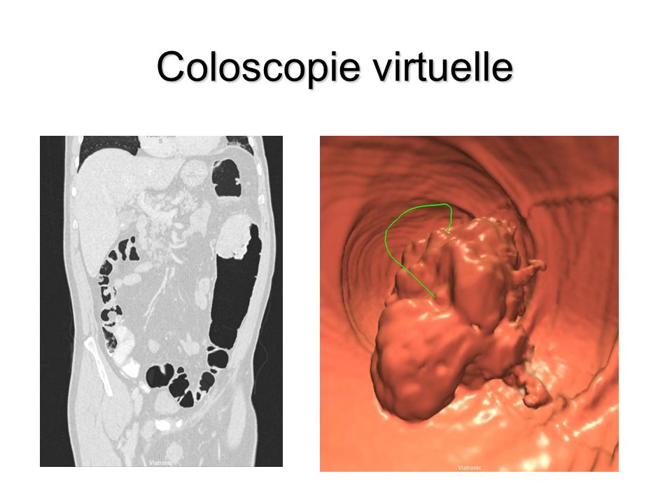 Coloscopie virtuelle