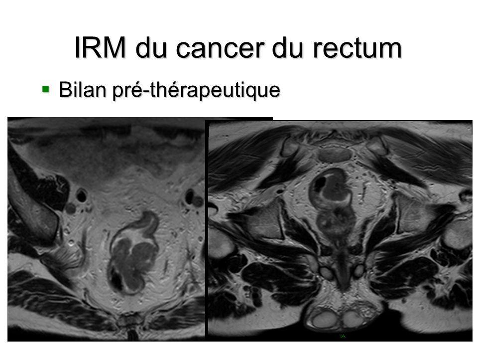IRM du cancer du rectum Bilan pré-thérapeutique