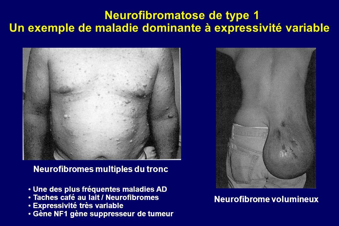 Neurofibromatose de type 1