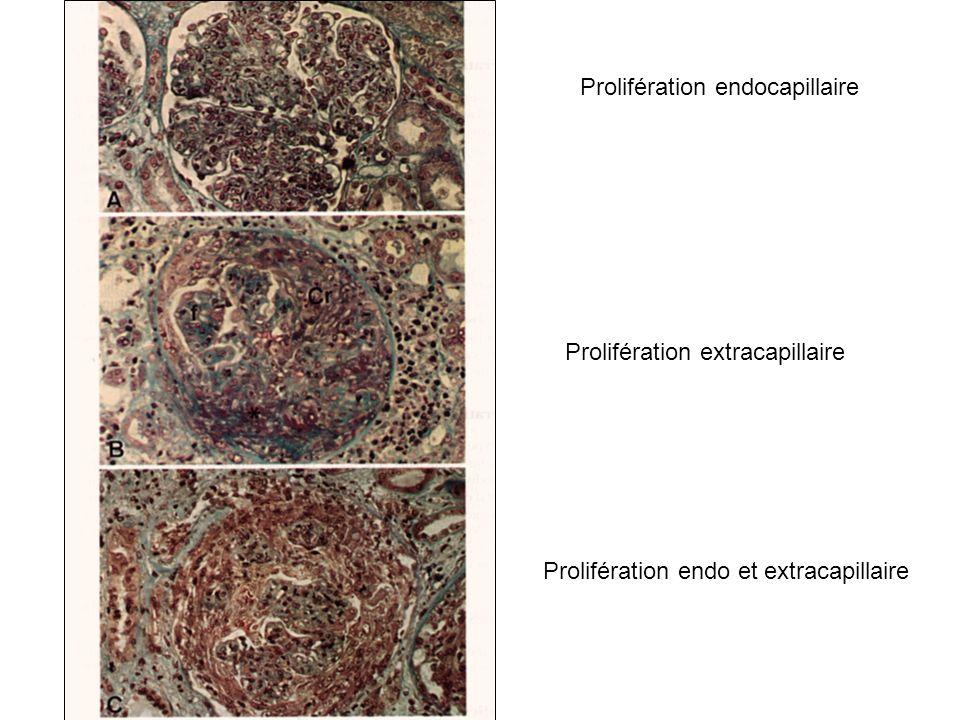 Prolifération endocapillaire