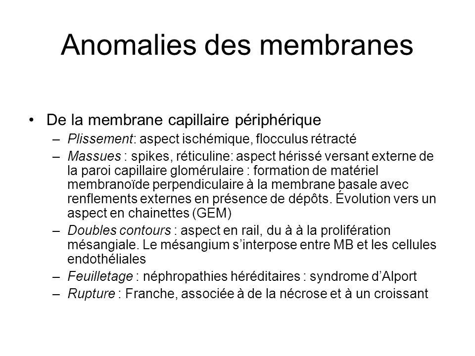 Anomalies des membranes