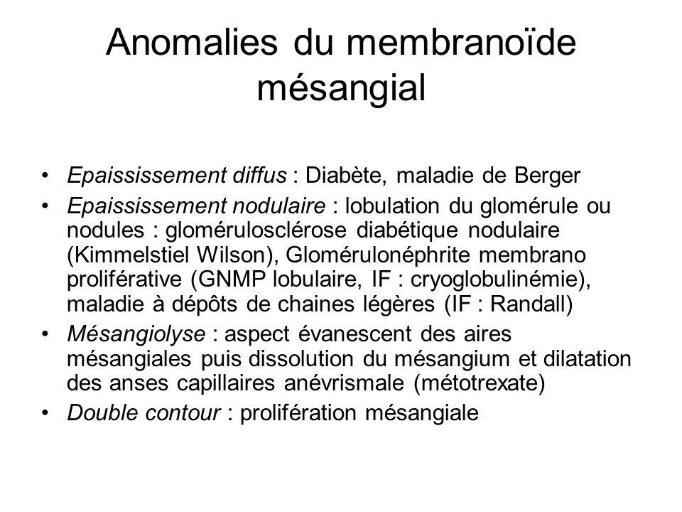 Anomalies du membranoïde mésangial