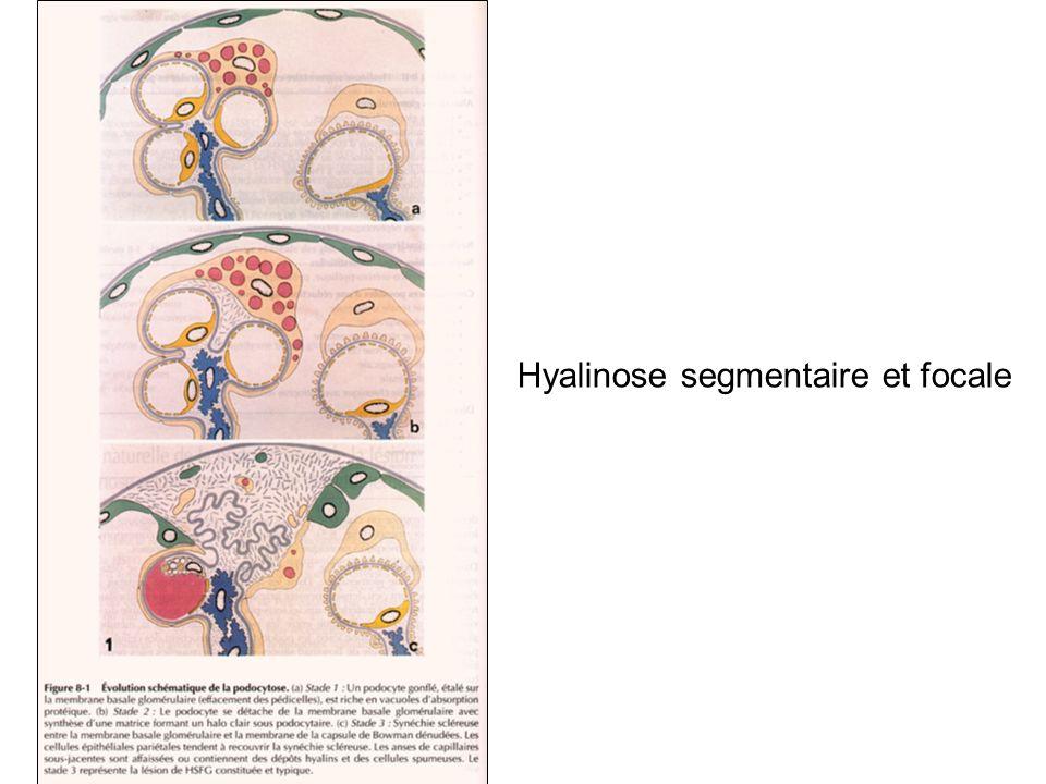 Hyalinose segmentaire et focale