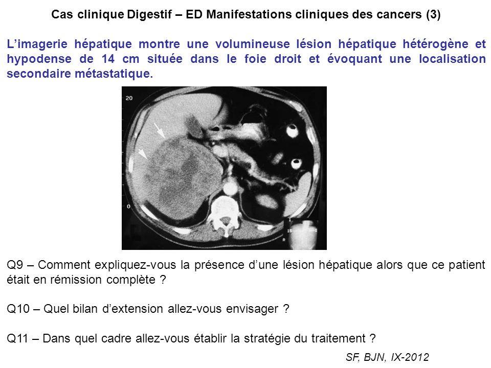 Cas clinique Digestif – ED Manifestations cliniques des cancers (3)