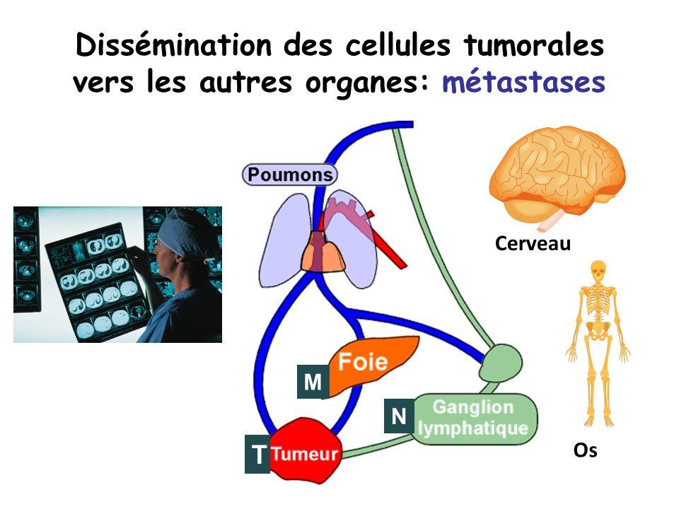 Dissémination des cellules tumorales vers les autres organes: métastases