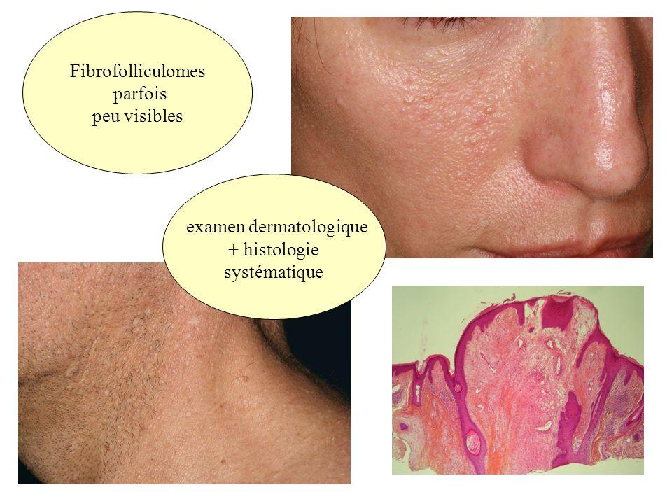 examen dermatologique