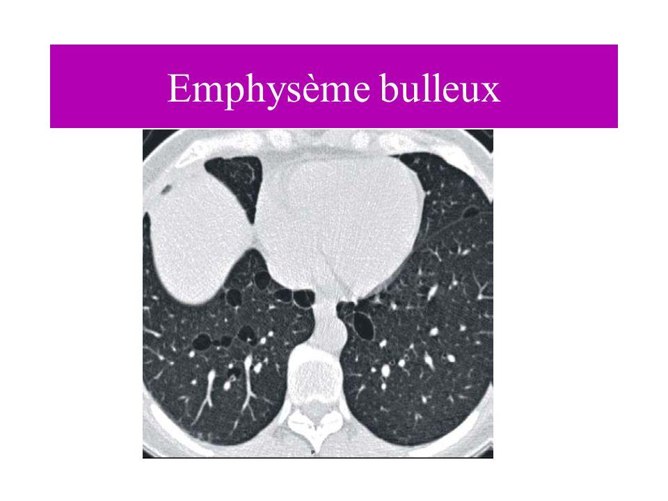 Emphysème bulleux