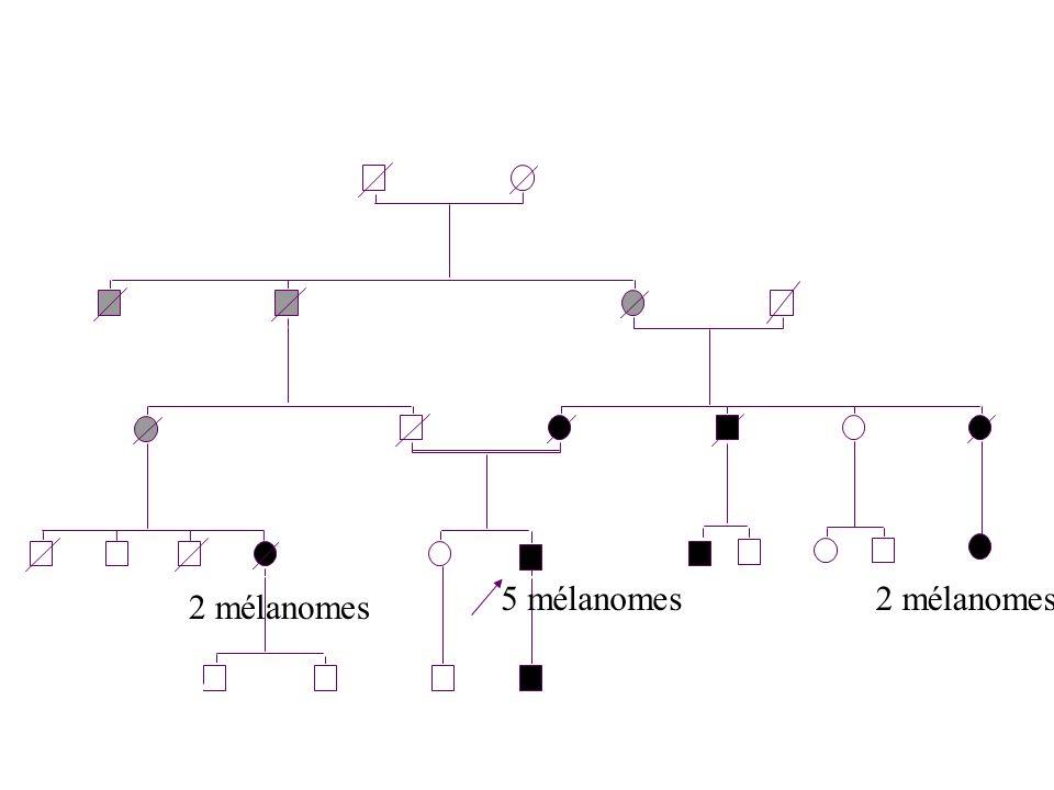 2 5 mélanomes 2 mélanomes 2 mélanomes 2 mm - 20