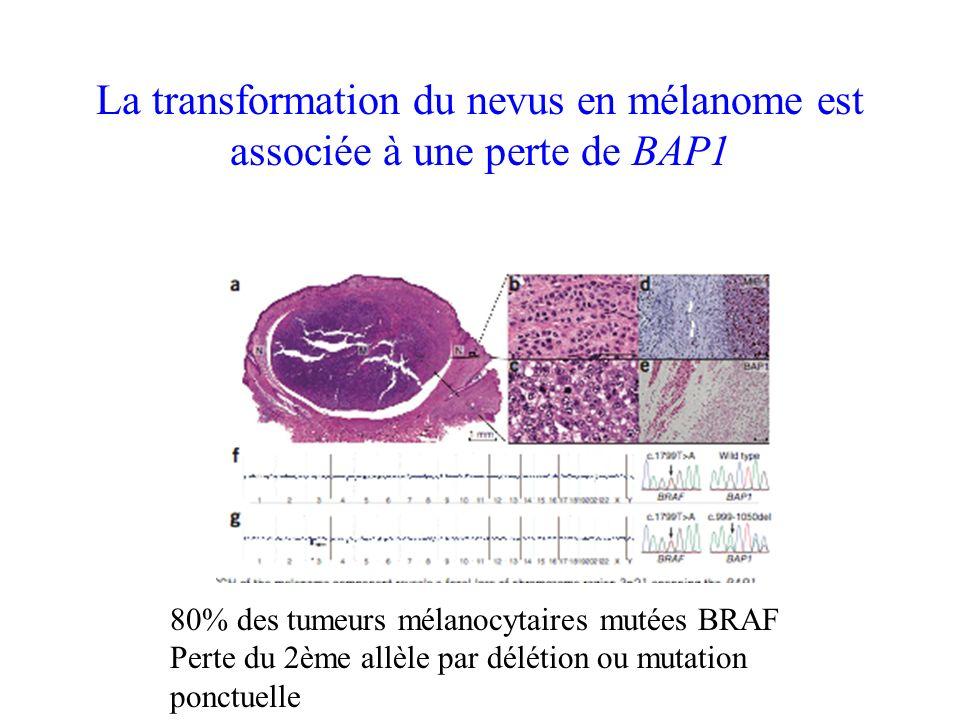 La transformation du nevus en mélanome est associée à une perte de BAP1