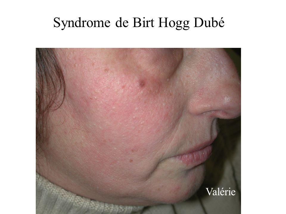 Syndrome de Birt Hogg Dubé