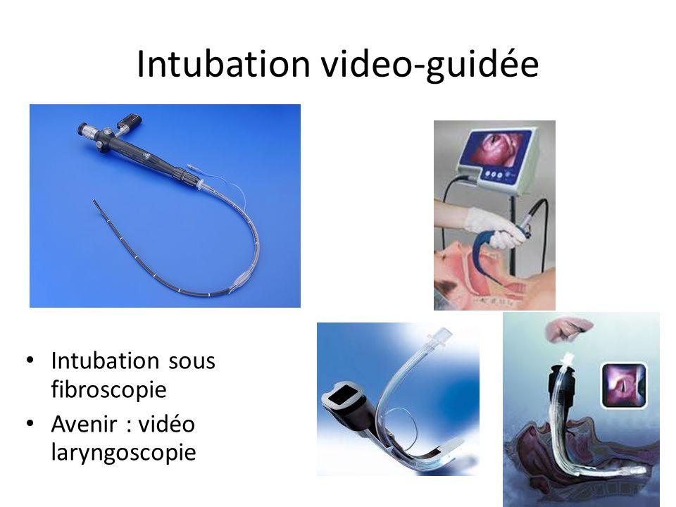Intubation video-guidée